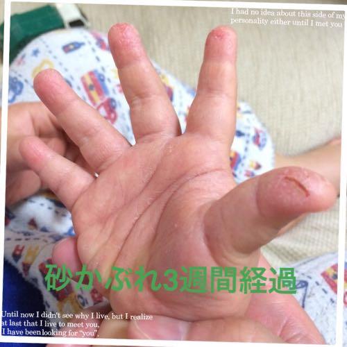 の 子供 が 手のひら むける 皮